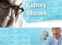 51 Tips for Dealing with Kidney Stones